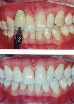 toothwhitening02