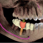sirona-implant