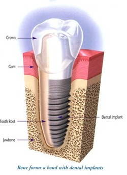 drschwan_implant
